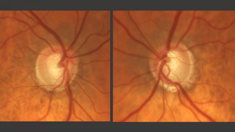 How to Evaluate the Optic Nerve (in 3D!)